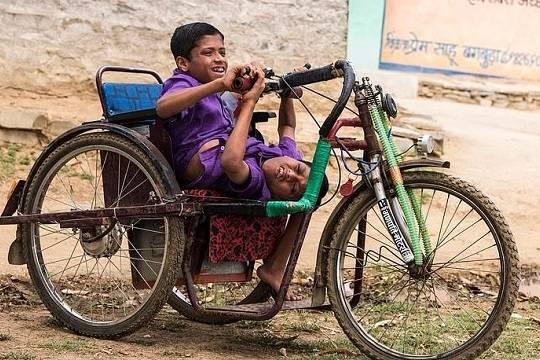 Сиамские близнецы из Индии отказались от разделения и не пожалели о своем решении