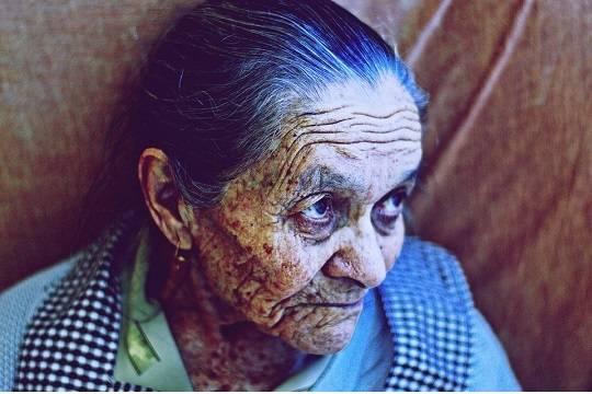 Ученые отыскали причину раннего старения женщин