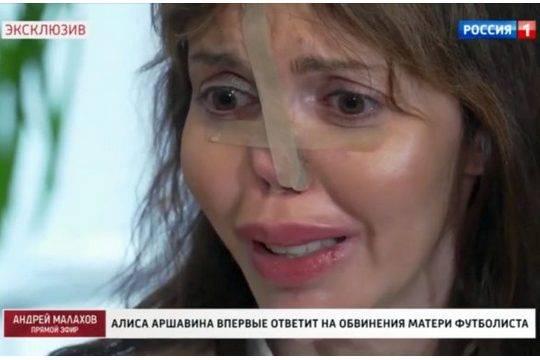 Экс-жена Аршавина пришла на телешоу и впервые показала обезображенное лицо